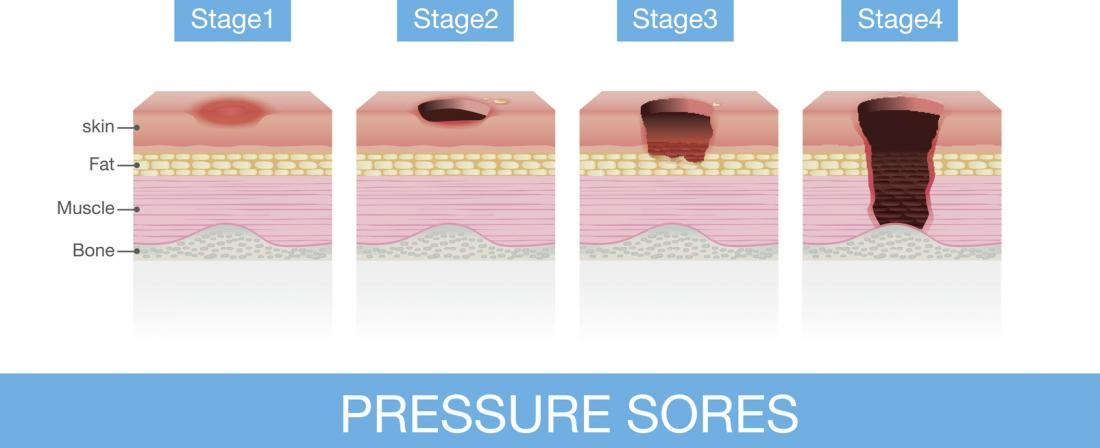 Advanced Wound Care Dressings For Bed Sores Pressure Ulcers